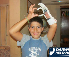 Felipe Miranda con su prótesis hecha en impresora 3D - Foto: Darwin Research
